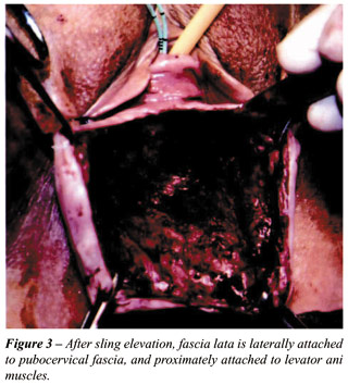 How is a cystoscopy done?