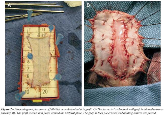 penile vein thrombosis treatment